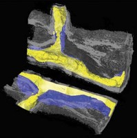 Complementary X-ray tomography techniques for histology-validated 3D imaging of soft and hard tissues using plaque-containing blood vessels as examples.