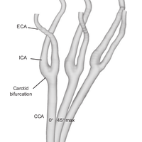 The role of the carotid sinus in the reduction of arterial wall stresses due to head movements – potential implications for cervical artery dissection.