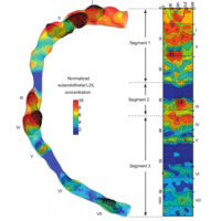Computed high concentrations of low-density lipoprotein correlate with plaque locations in human coronary arteries.