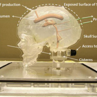 Phantom model of physiologic intracranial pressure and cerebrospinal fluid dynamics.