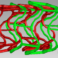 Hemodynamics in coronary arteries with overlapping stents.