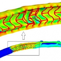 Drug deposition in coronary arteries with overlapping drug-eluting stents