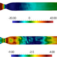 Reduced-order modeling of blood flow for noninvasive functional evaluation of coronary artery disease
